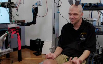 Un hombre tetrapléjico logra controlar brazos robóticos con su mente