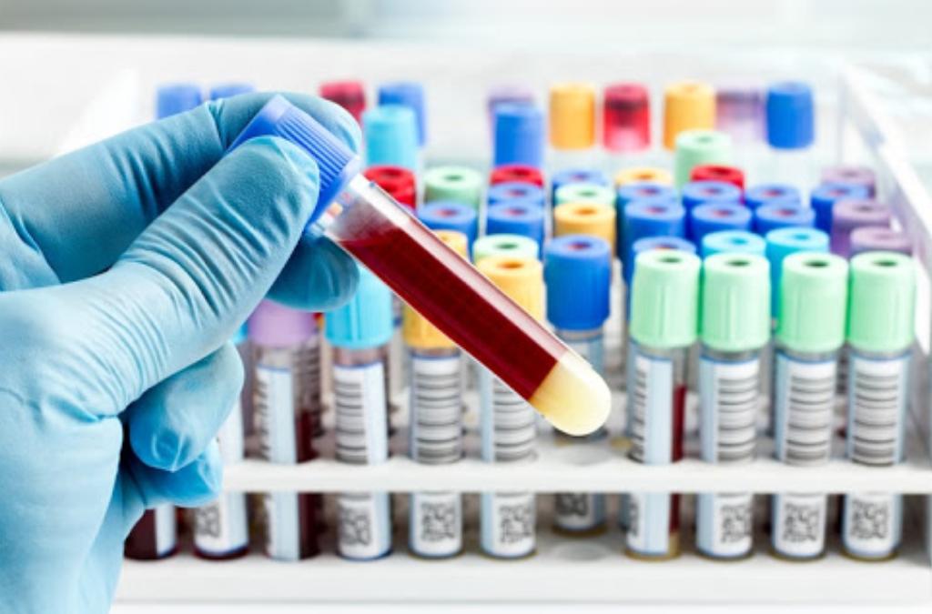 Crean un dispositivo que detecta el cáncer en muestras de sangre con una precisión del 95%